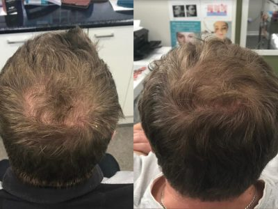 hair loss prp