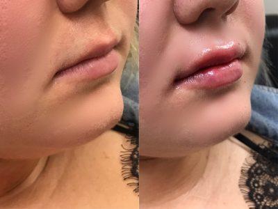 lip filler 2