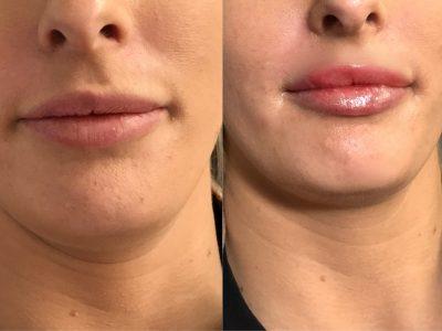 lip filler 3